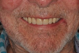 implant retained denture banbury