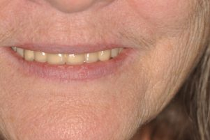 professional denture implants