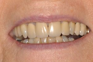 banbury singular dental implants