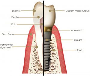 dental implant diagram banbury