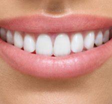dental implants in banbury