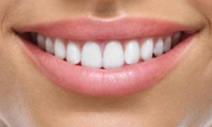 dental implants in banbury