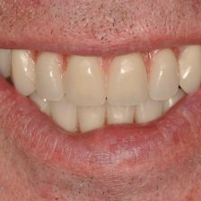 denture implants banbury