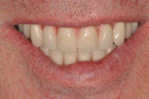 dentist implants