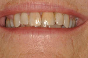 orthodontic treatment in banbury