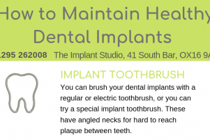 Dental Implants Snippet